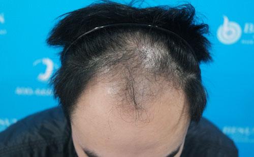发际线脱发严重怎么办呀?