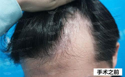发际脱发可以通过植发来改变吗?