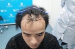 植发案例:秃成大叔,被女友吐槽后,小伙决定去植发