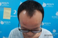 植发案例:M型脱发,倍生植发3000单位,自信和形象的拯救之旅