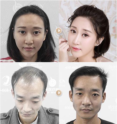 倍生瑞士NAT美学植发技术效果是中国最好的吗?