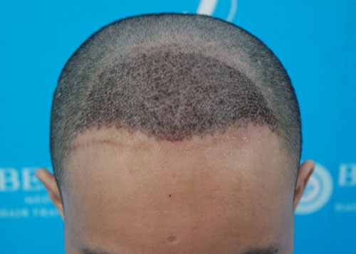 发际线调整后头皮会出现麻木状态吗?