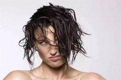 女性也会得脂溢性脱发吗