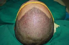 倍生瑞士NAT美学植发的毛囊成活率为什么这么高?