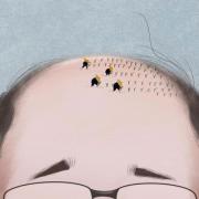当传统植发遇到NAT美学植发,胜负立分