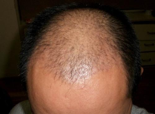 脱发千万不要马上选择植发