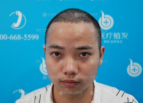 深圳植发手术费用并没有那么高