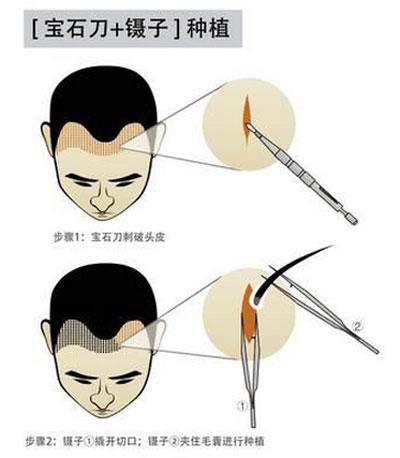 深圳植发医院技术有何区别