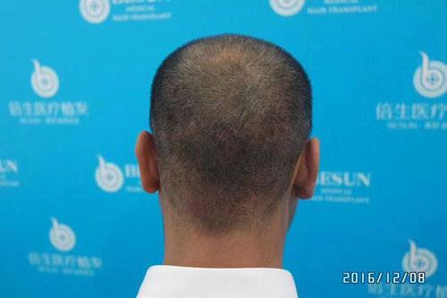深圳倍生植发案例植发术后的第十天发际线植发效果