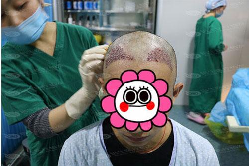 植发手术中