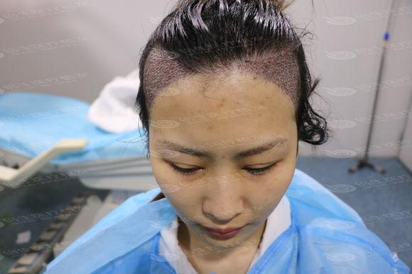 深圳倍生植发案例,女发际线种植