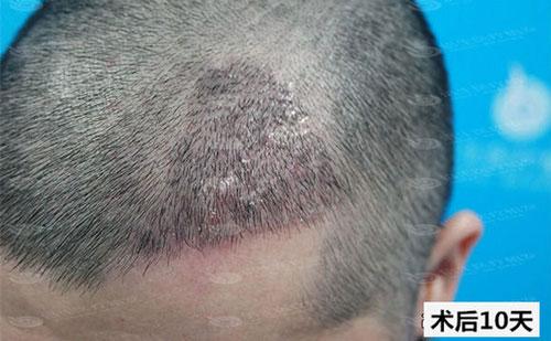 植发后10天的效果图