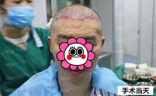 M型脱发植发中