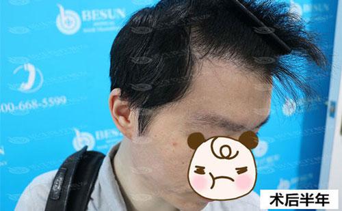植发后半年的植发效果