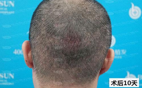 植发后10天后枕区的效果