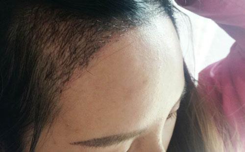 女生发际线过高,前额两边都秃了怎么办