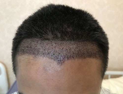 植发手术后保护
