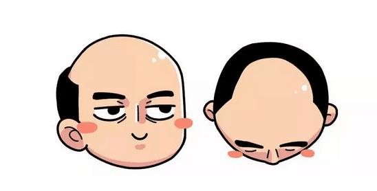 脱发问题,应该如何治疗脱发