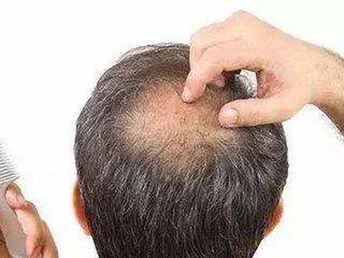 造成溢脂性脱发的原因,应该如何治疗