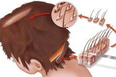 倍生自体毛发移植有什么优势呢