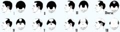 男性脱发的原因是什么呢