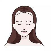 发际线种植后要多久才能长出头发