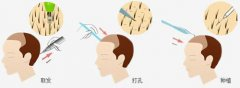 深圳倍生植发医院的植发技术怎么样