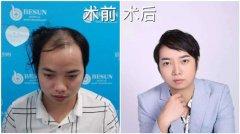 在深圳倍生植发医院植发的效果都很不错