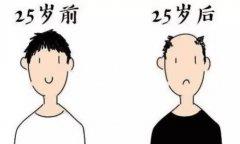 在深圳倍生植发医院植发后发友怎么样了
