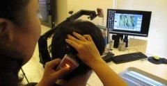 深圳植发的费用取决于发友的脱发程度