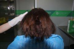 深圳植发原来可以不剃发种植
