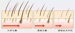 毛囊萎缩和毛囊闭合有什么不同?