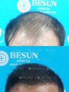 深圳植发可以让发友重新生长出头发