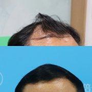 深圳植发的效果是很不错的