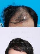 深圳植发的效果是很好的