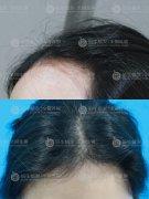 深圳植发要选择正规的植发医院