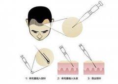深圳植发只要选择了正规植发医院都是很安全的