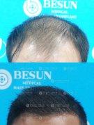 深圳植发没有年龄限制