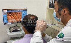 深圳植发前最好先做好全方面的检查