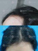 深圳植发后需要注意清淡饮食