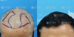 深圳植发对于治疗脱发有奇效