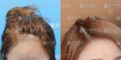 深圳植发后不会留疤