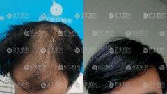 头发还是要真实长在头顶的有安全感